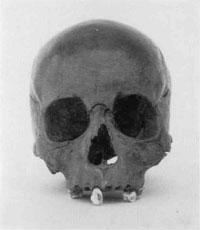 斬首された女性の頭骨